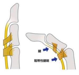 ばね指の構造