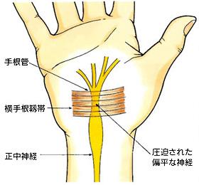 手根管症候群のイラスト